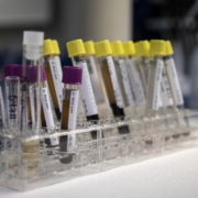 Что можно узнать о здоровье из базовых анализов крови